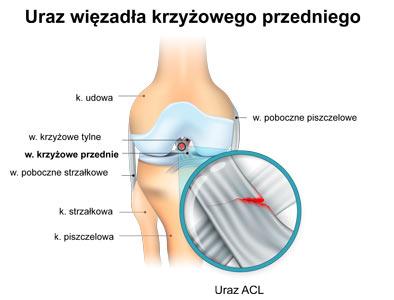 Rehabiiltacja po rekonstrukcji więzadła krzyżowego przedniego ACL